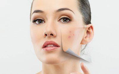 Terapie skojarzone w leczeniu trądziku różowatego i trądziku pospolitego.